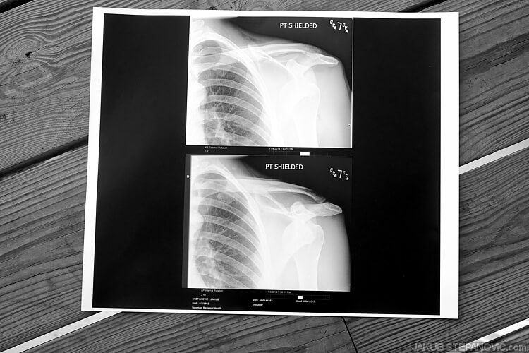 Here is a x-ray of that.
